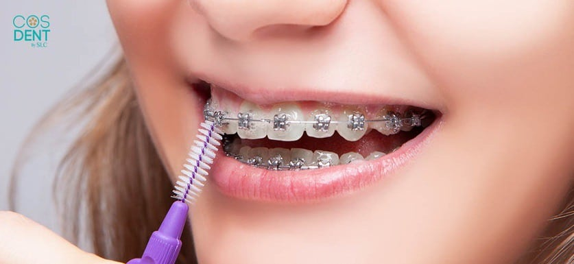 แปรงซอกฟัน เทคนิคการดูเเลฟันขณะจัดฟัน