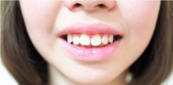 Cách niềng răng hô được thực hiện như thế nào?