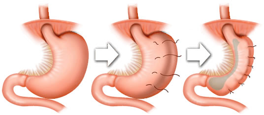 Gastric Plication Surgery - Gastric Plication Surgery in Mexico