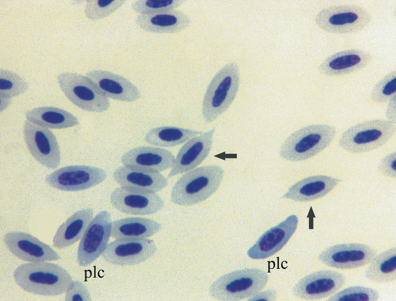 Poikilocytes (arrows) are seen in metabolic defects and increased erythropoiesis