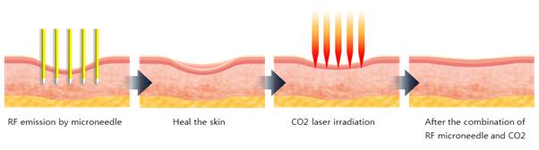 Cơ chế tái tạo da của phương pháp trị sẹo lõm lăn kim tế bào gốc