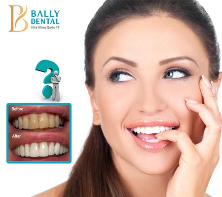 Làm máng tẩy trắng răng được sử dụng khi nào?
