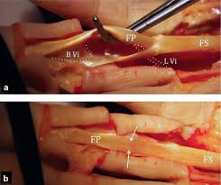 A picture of a dissected finger showing the flexor tendon.