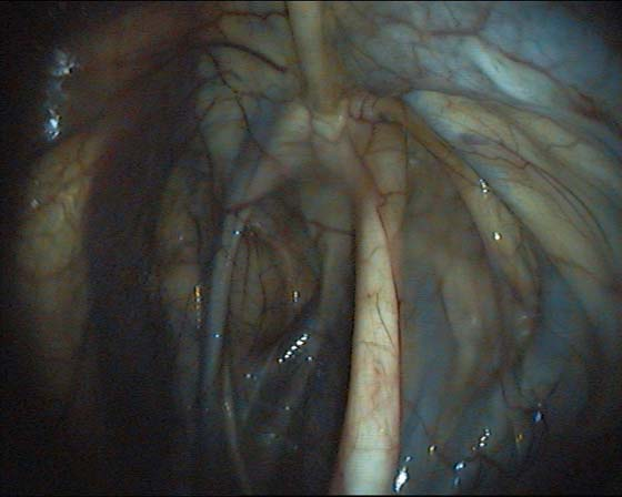 Endoscopic anatomy of a normal guttural pouch. The medial compartment is on the left side of the image.