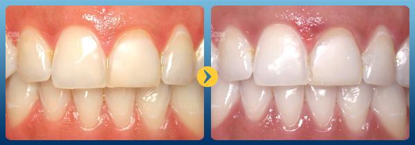 Lấy cao răng có tốt không? Ảnh hưởng của cạo vôi răng sai kỹ thuật 1