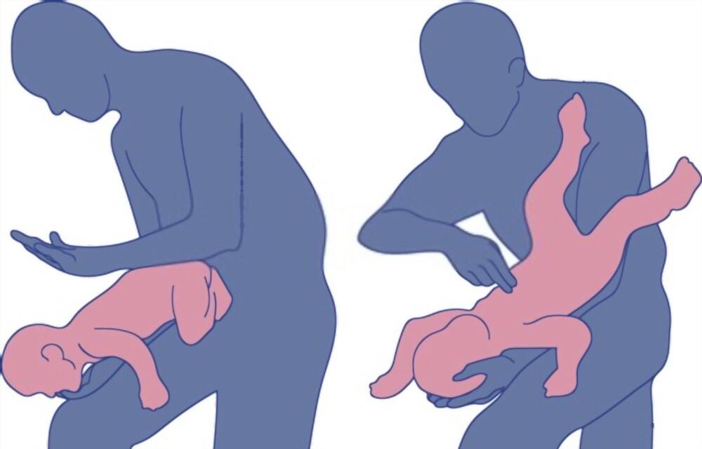 treating choking in infants