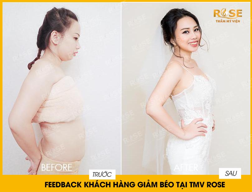 Phương pháp giảm béo hiệu quả tại thẩm mỹ viện Rose Cầu Giấy - Ảnh 2