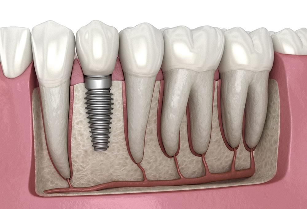 Имлантация 1 зуба