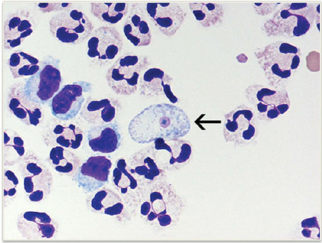 wet mount of Naegleria fowleri trophozoites cultured from CSF