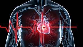 cardiac faliure