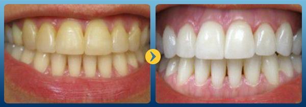 Cách làm trắng răng bằng rau húng quế Vĩnh Viễn hiệu quả tức thì 1