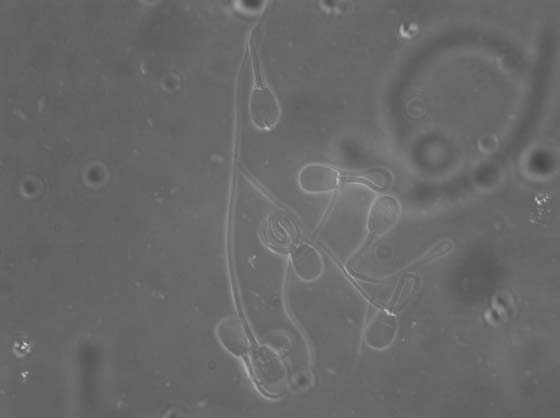 Coiled and bent sperm tails. Unstained sperm cells seen by differential interference contrast microcopy.