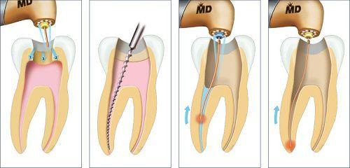 Quy trình lấy tủy răng như thế nào là đảm bảo an toàn? 1