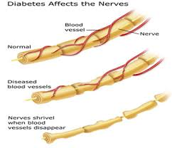 Image result for diabetic neuropathy