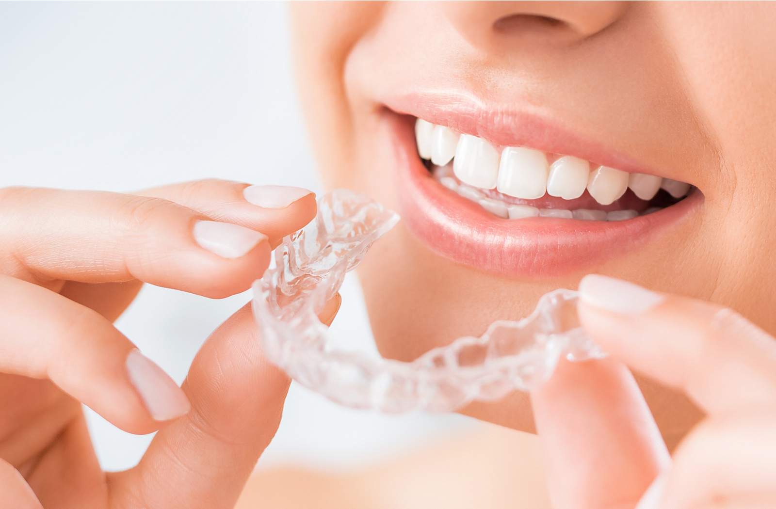 woman smiling holding Invisalign aligner about to put them in her mouth
