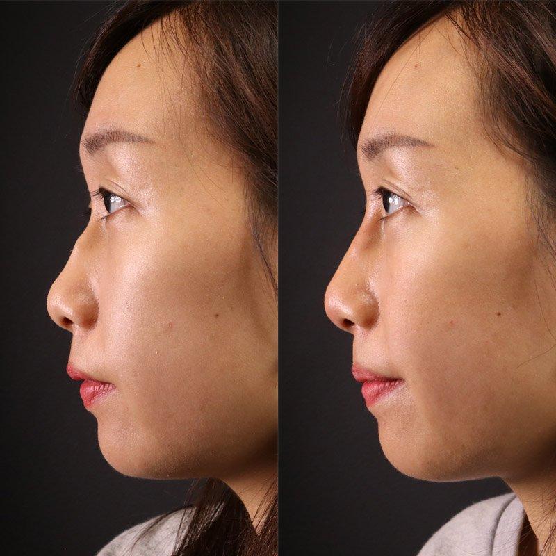 nâng mũi giữu được bao nhiêu lâu