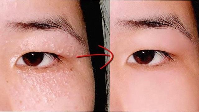 trước và sau khi trị mụn đá