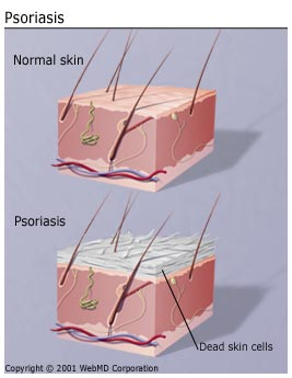 get the basics on psoriasis