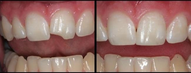 Chia sẻ kinh nghiệm Bị mẻ răng cửa có trám được không từ bác sỹ 1