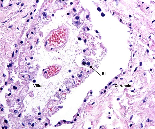 Villus within the caruncle with binucleate cell