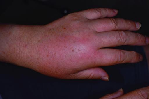 Calabar swelling