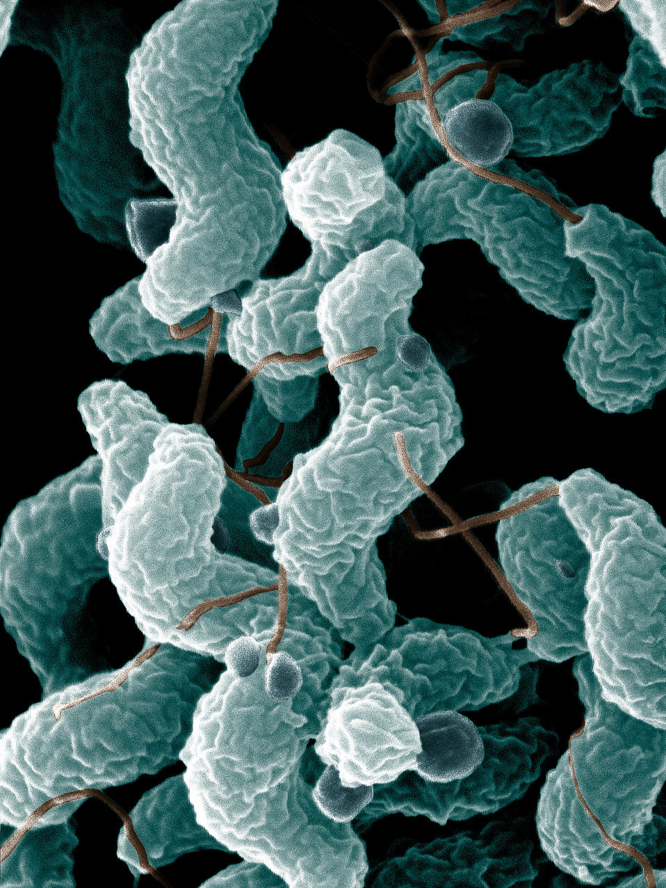 10072-campylobacter-bacteria-as-seen-from-an-electron-microscope-pv.jpg