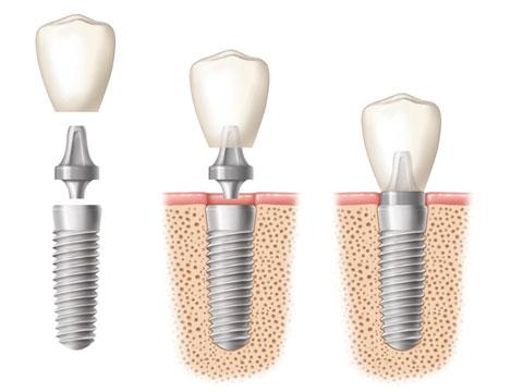 Разборные имплантаты