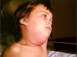 النكاف (Mumps)