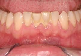 Giải đáp: Cạo vôi răng có hết HÔI MIỆNG không từ bác sỹ nha khoa