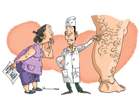 Hướng dẫn phòng ngừa và chăm sóc người bị suy tĩnh mạch chi dưới