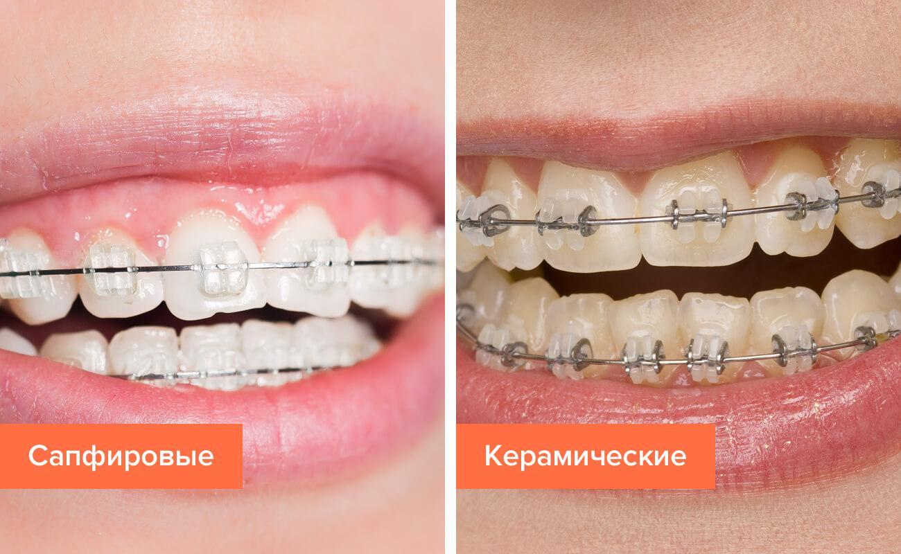 Сапфировые брекеты — установка, отзывы, фото до и после лечения ...