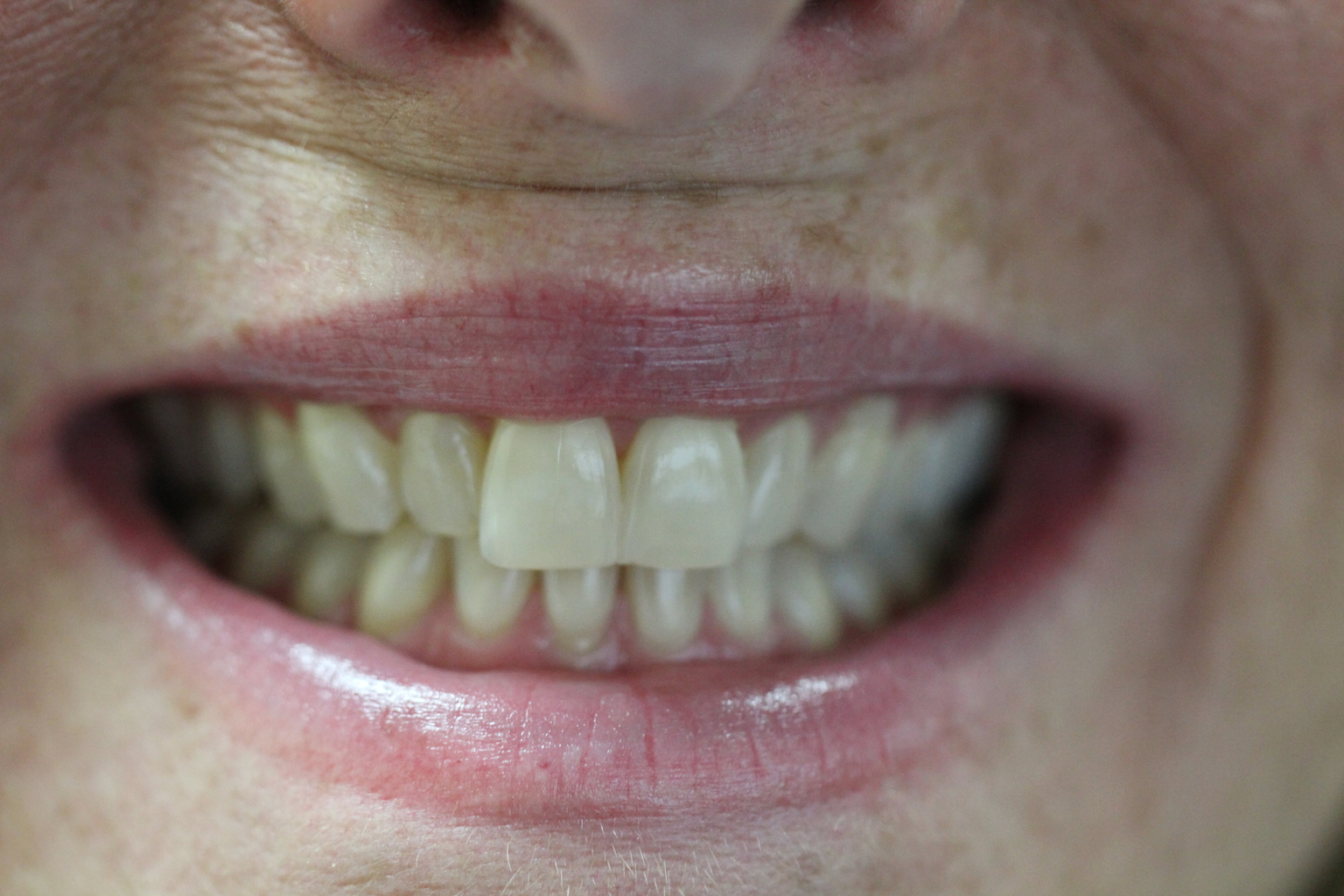 Before Teeth Whitening at Ames Family Dental