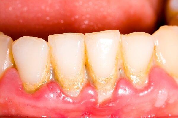 Lấy cao răng mất bao nhiêu thời gian phụ thuộc vào những yếu tố nào