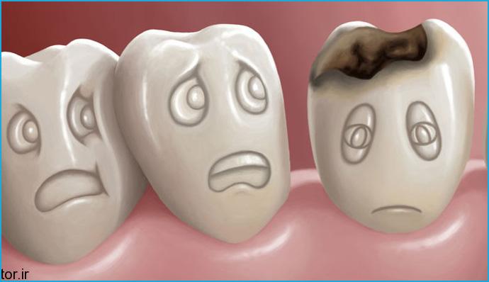 Chi phí trám răng sâu bao nhiêu tiền? [Bảng giá mới nhất]