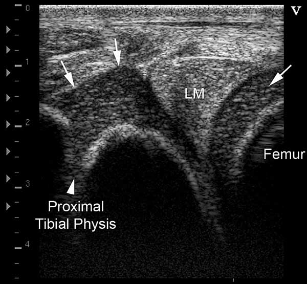 """Normal appearance of lateral stifle in a 1-day-old foal. Note the thick cartilage layer with its speckled appearance and the """"V"""" shaped appearance of the proximal tibial physis"""