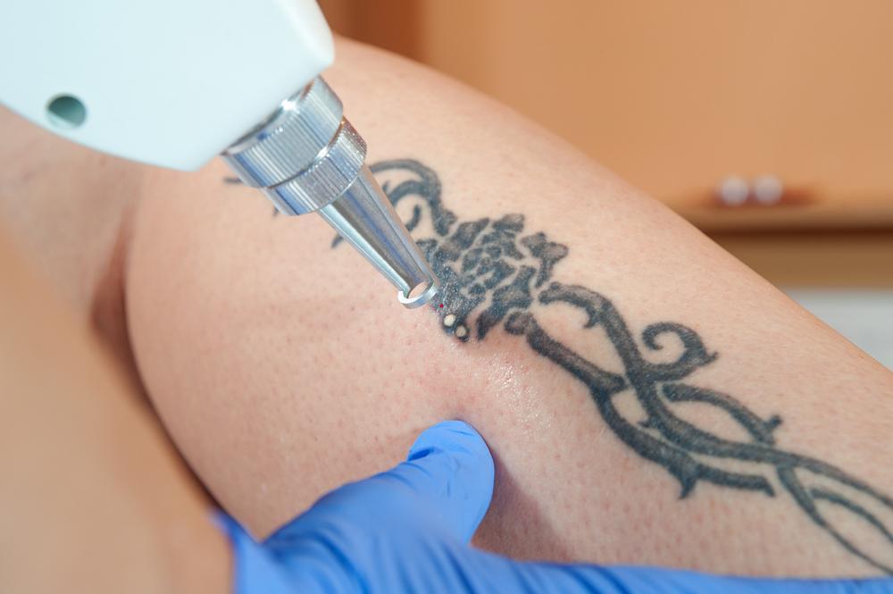 Laser-Tattoo-Removal.jpg