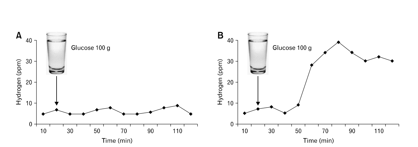 Image taken from: Is It Useful to Administer Probiotics Together With Proton Pump Inhibitors in Children With Gastroesophageal Reflux? showing no significant increase in hydrogen (left) indicating no SIBO and a significant increase (right) showing SIBO. Quality breath tests will also record methane levels simultaneously.