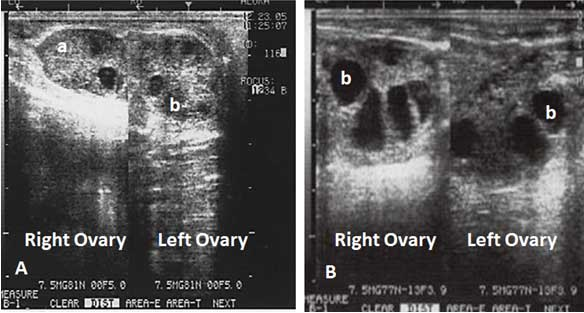 Ultrasonographic images of the ovaries of a superstimulated water buffalo 11A. Image of the two ovaries of a female buffalo on Day two of the FSH superovulatory treatment; a CL (a) and a group of follicles (b) < 5 mm diameter are shown. 11B. A scan of the same animal was performed at Day 5 after the FSH treatment started, a group of follicles between 8-10 mm are observed (b). Note the increased size of the ovaries.