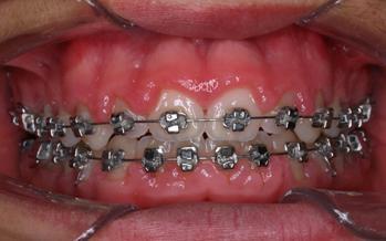 El cepillado eléctrico en la higiene dental con ortodoncia