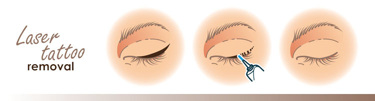 graphic of laser eyeliner tattoo removal showing three steps of before, during and after
