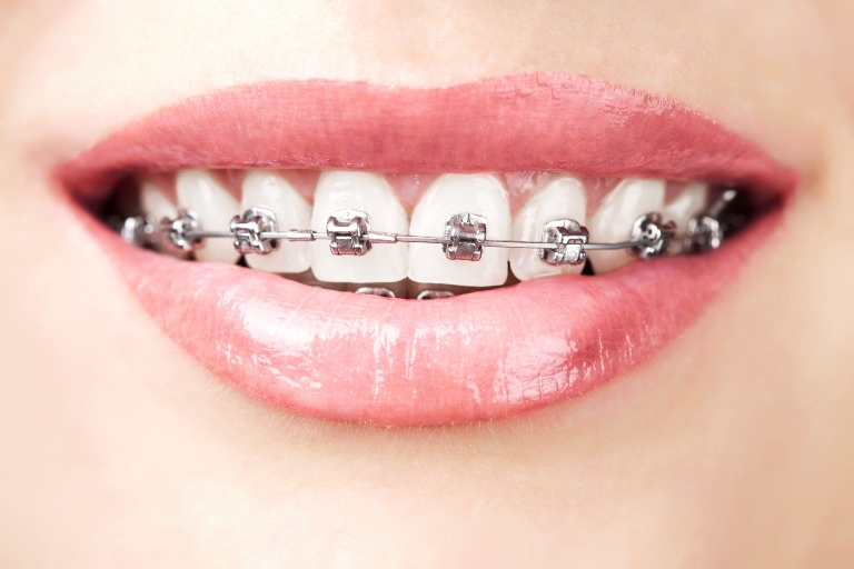 Giải pháp chỉnh răng không cần niềng có được không?