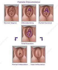 أنواع الختان عند الإناث