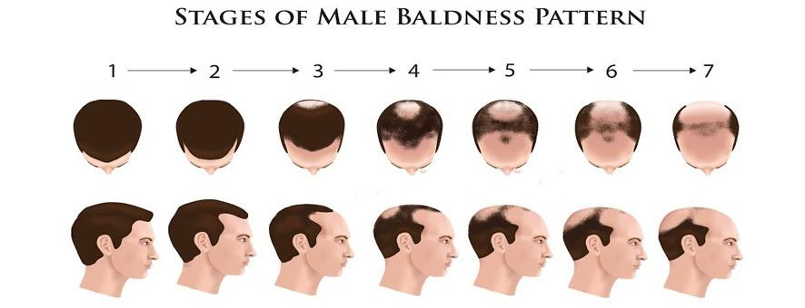 Stages of Baldness