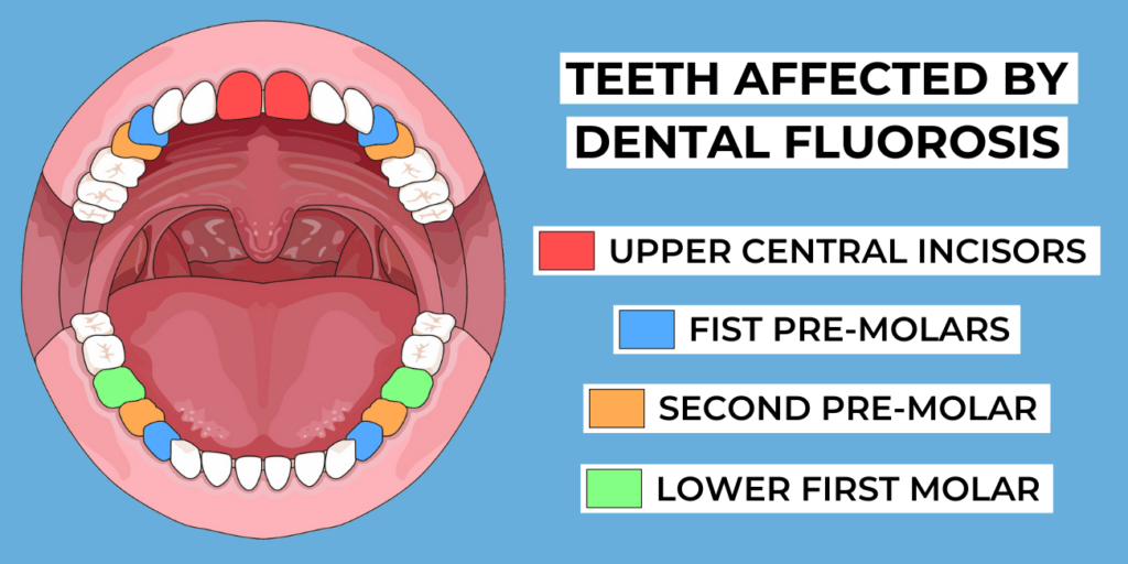 teeth affected by dental fluorosis