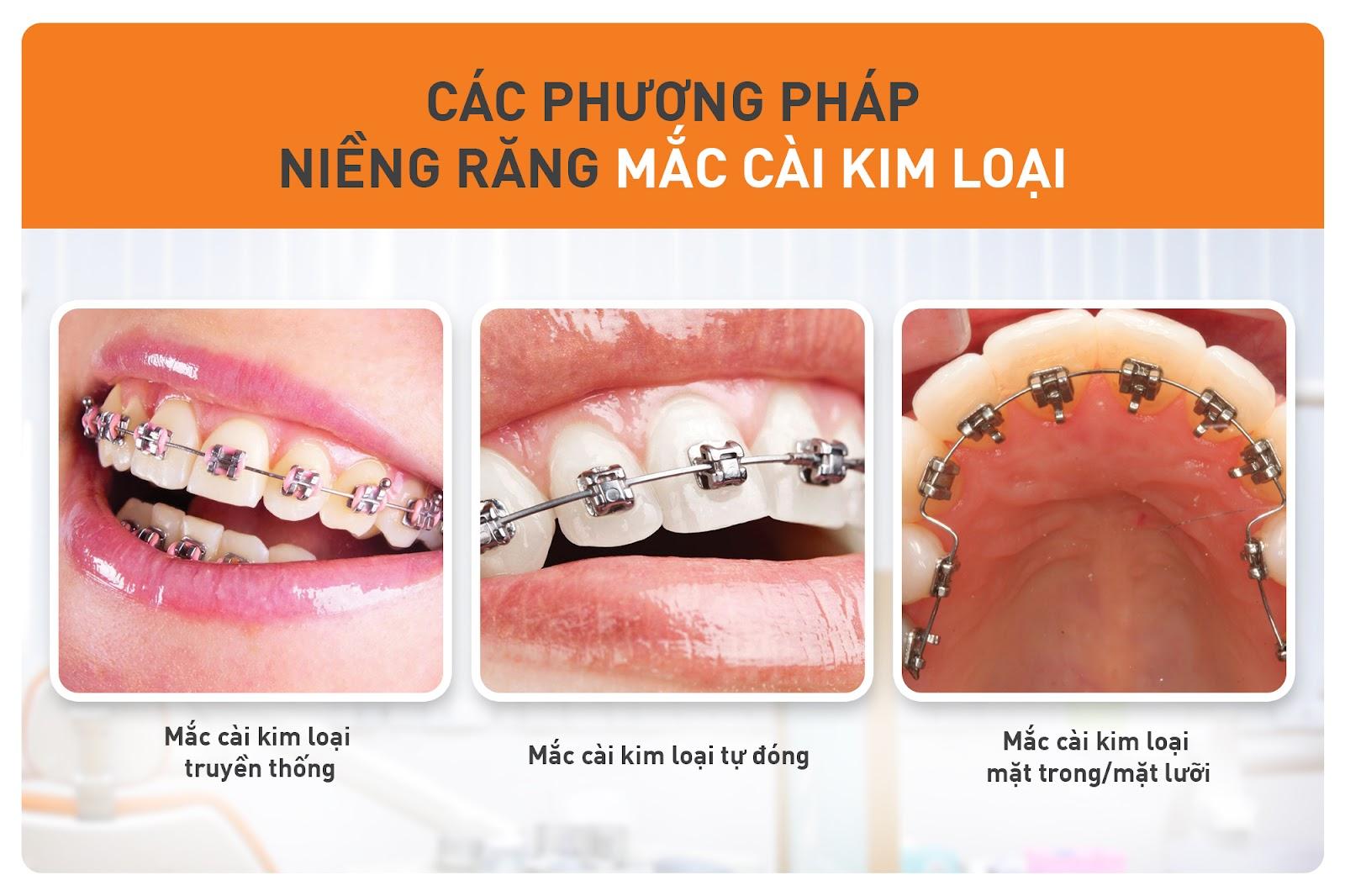 các phương pháp niềng răng kim loại