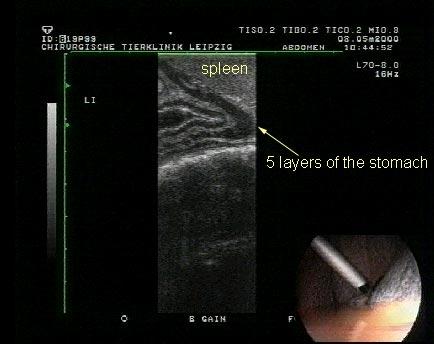 """Laparoscopía ultrasonográfica del estómago en el lado izquierdo con el bazo como un """"cojinete de contraste""""."""