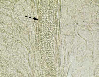 Sábana de artroconidias (flecha) que se observa después del tratamiento de raspado de piel con KOH al 10%. Este es el método diagnóstico de tiña más utilizado por micólogos y clínicos.