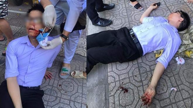 Thái Bình: Sáng tố cáo lãnh đạo, chiều bị hành hung bất tỉnh - Ảnh 1