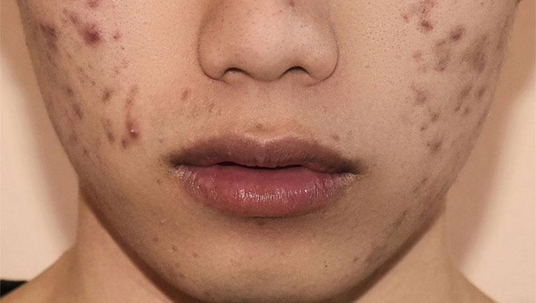 Mụn thâm: Nguyên nhân và phương pháp điều trị hiệu quả, an toàn cho da