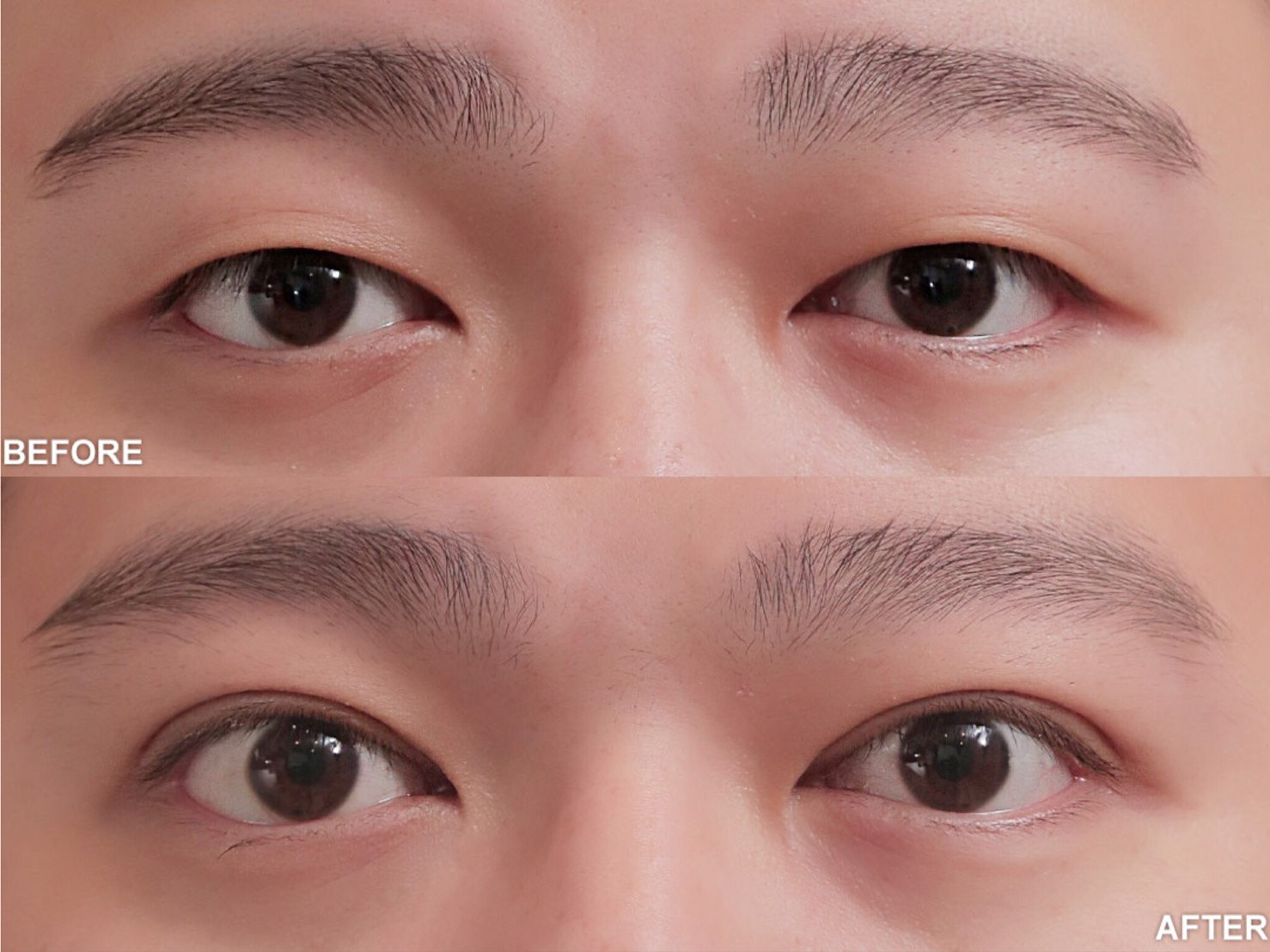 雙眼皮手術術前術後